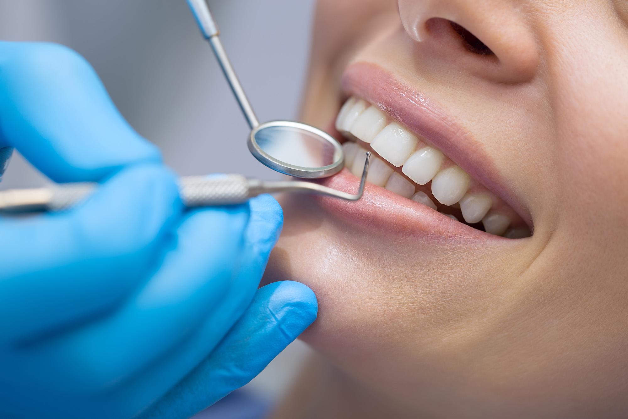 kodėl keičiasi dantų spalva